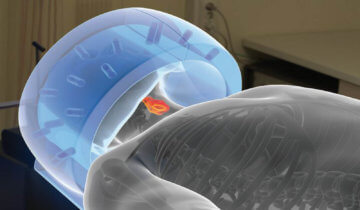 Sensius treats cancer with microwave energy